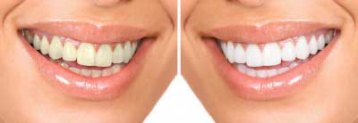Tooth Whitening Cumbernauld